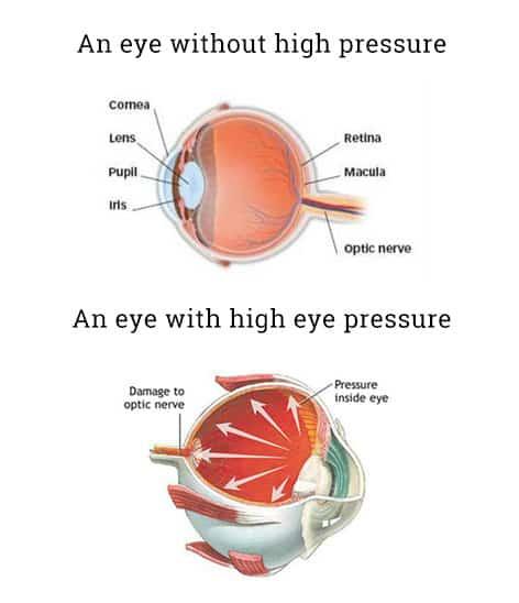 ba3ab44455a Ocular Hypertension - Spectacular Eyewear