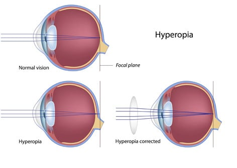 c85585e71c4 Hyperopia - Spectacular Eyewear